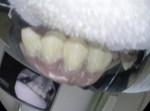 בלעה את השיניים התותבות