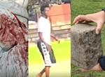 התוקף לצד האבן והבגד המגואל