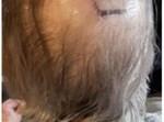 צלב הקרס על ראש המבוגר