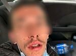 צעיר חרדי שהותקף על ידי ערבים