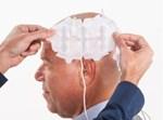 הקסדה החכמה לטיפול בסרטן המוח
