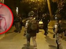 """שוטר שנפצע במא""""ש"""