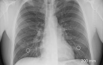 תיעוד מצילום רנטגן